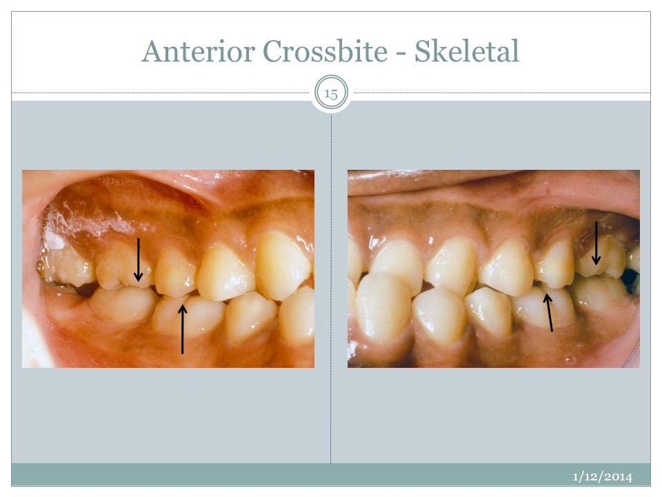 Anterior Crossbite - Skeletal