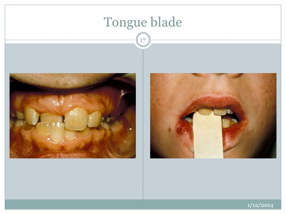 Tongue blade Can move tooth enough force there, many children can do this – do it as early as possible.