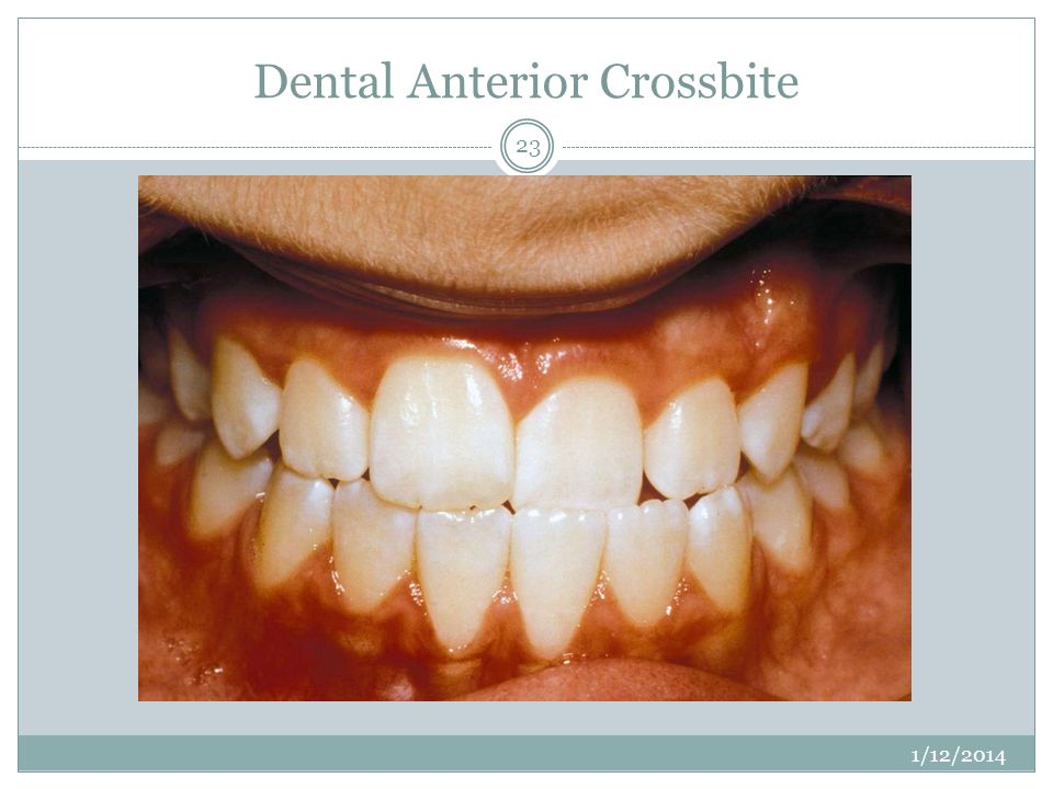 Dental Anterior Crossbite