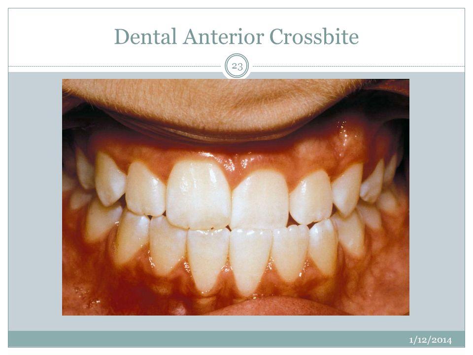 Dental Anterior Crossbite