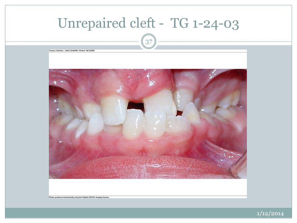 Unrepaired cleft - TG
