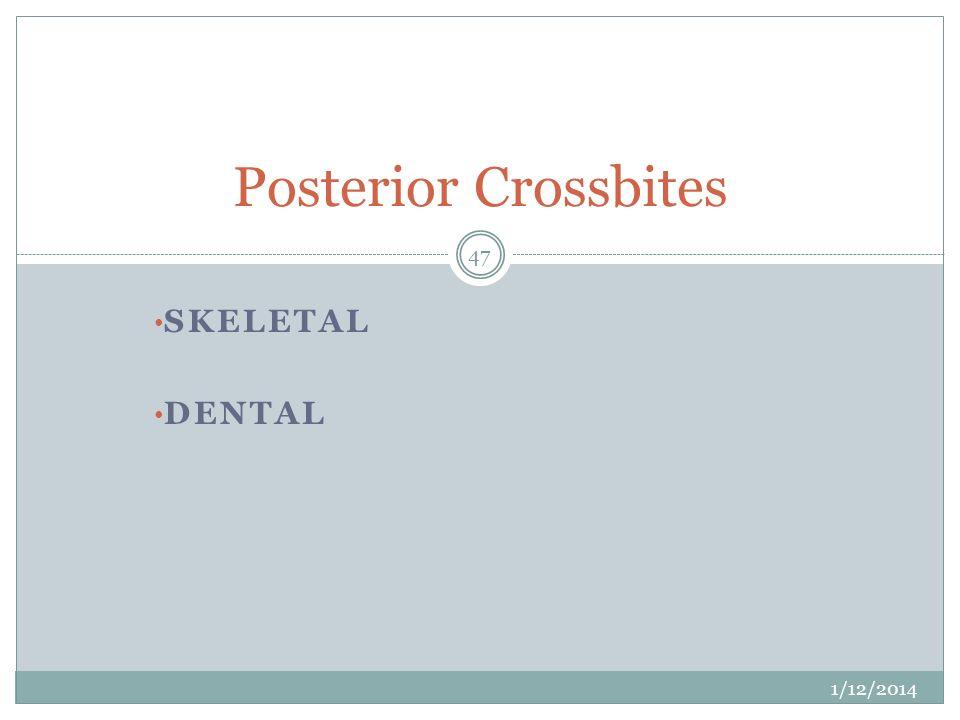 Posterior Crossbites Skeletal dental 3/25/2017