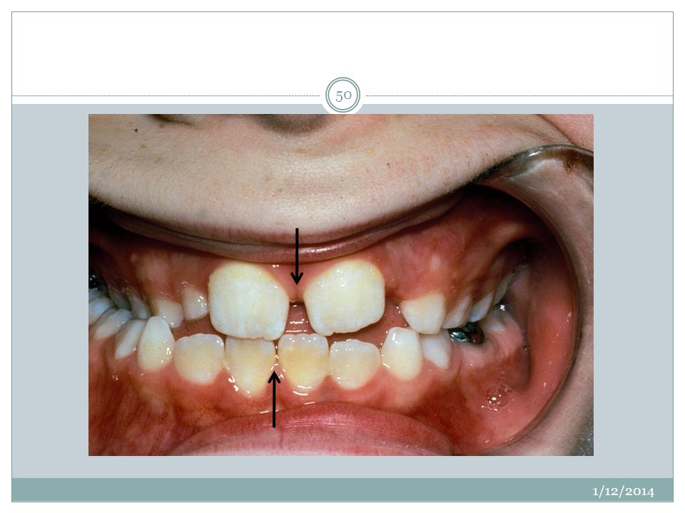 Patient exhibits a shift, so instead of being a unilateral posterior crossbite, you have a bilaterally constricted maxilla with a shift