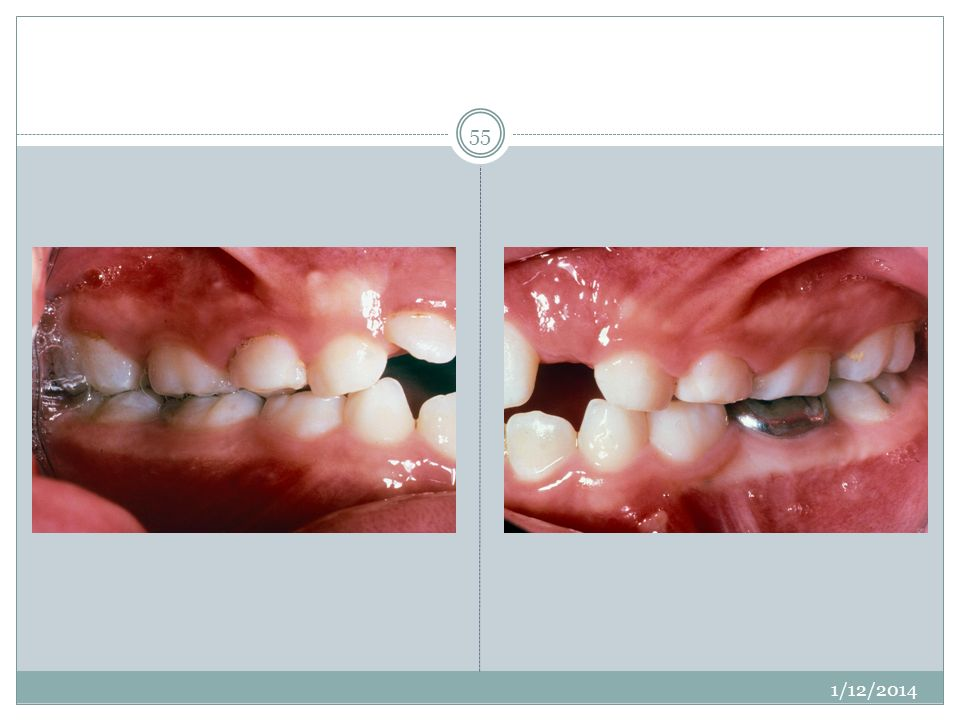 Occlusion is much more classone and the molar position has not changed