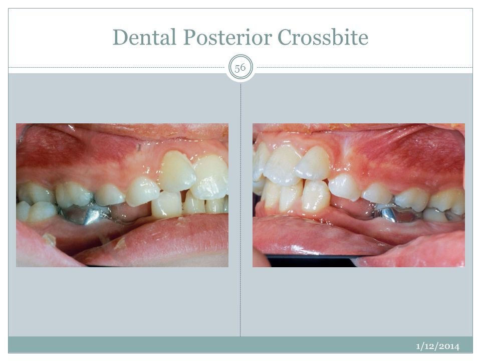 Dental Posterior Crossbite