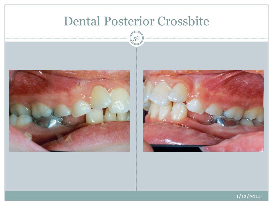 Dental Posterior Crossbite