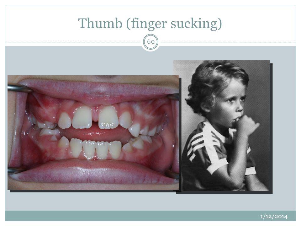 Thumb (finger sucking)