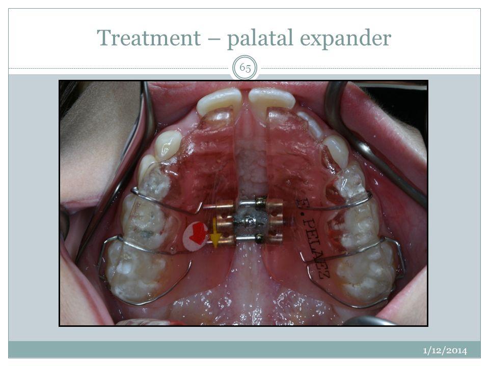 Treatment – palatal expander