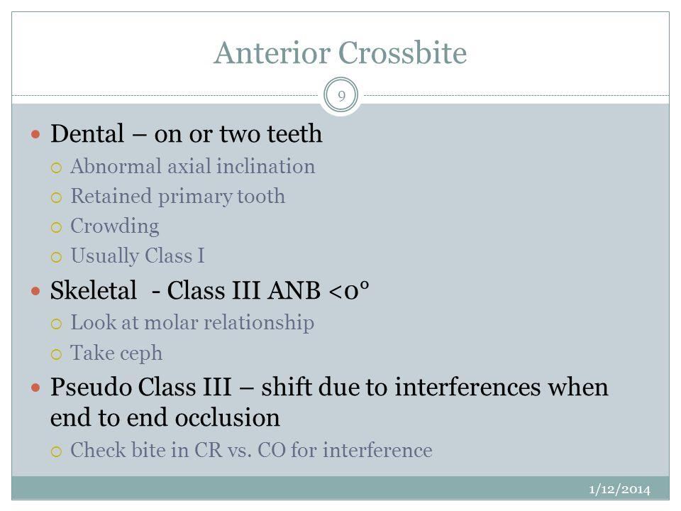 Anterior Crossbite Dental – on or two teeth