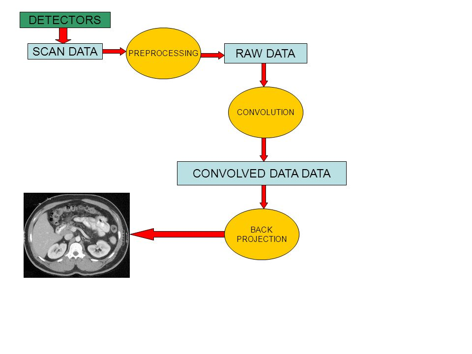 DETECTORS SCAN DATA RAW DATA CONVOLVED DATA DATA PREPROCESSING