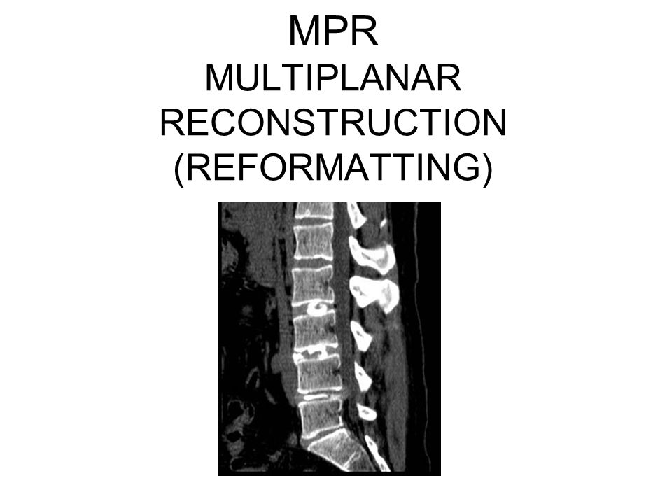 MPR MULTIPLANAR RECONSTRUCTION (REFORMATTING)
