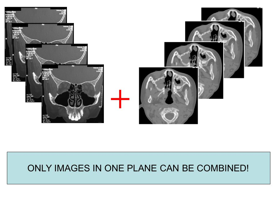 ONLY IMAGES IN ONE PLANE CAN BE COMBINED!