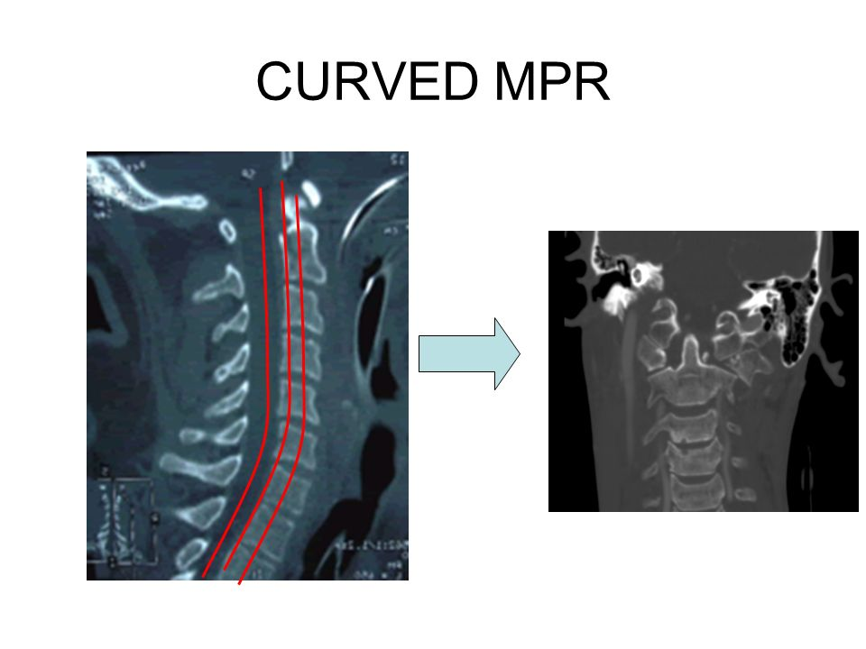 CURVED MPR