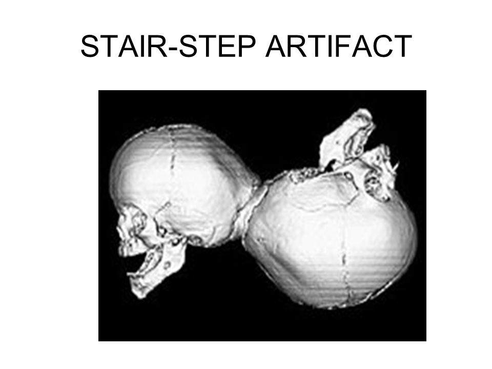 STAIR-STEP ARTIFACT