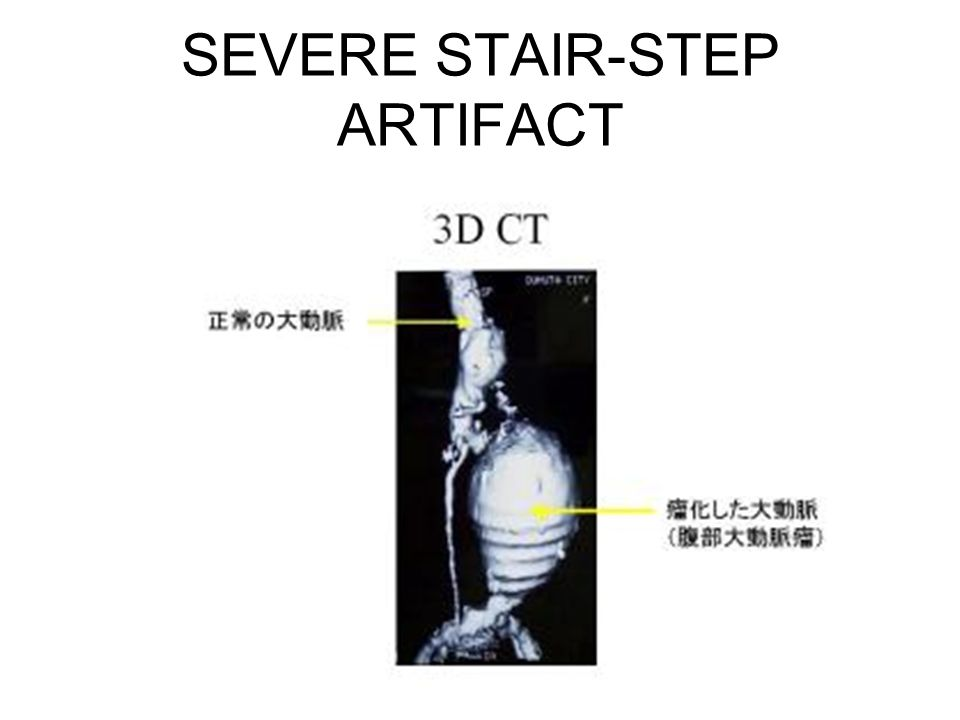 SEVERE STAIR-STEP ARTIFACT