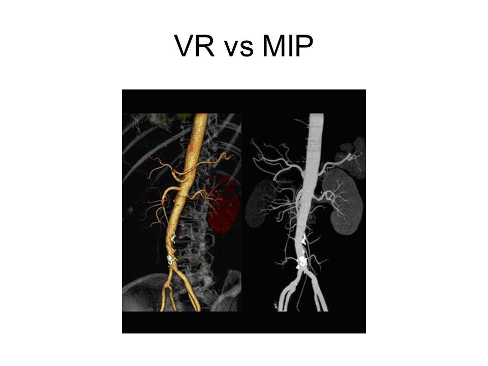VR vs MIP