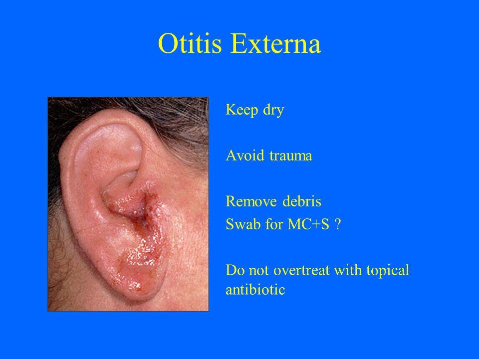 Otitis Externa Keep dry Avoid trauma Remove debris Swab for MC+S