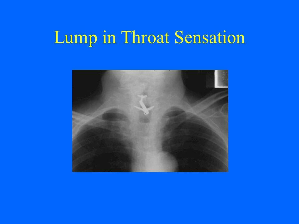 Lump in Throat Sensation