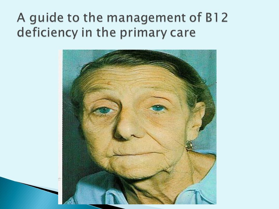 A guide to the management of B12 deficiency in the primary care