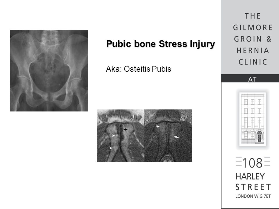 Pubic bone Stress Injury