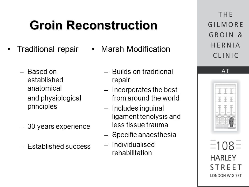 Groin Reconstruction Traditional repair Marsh Modification