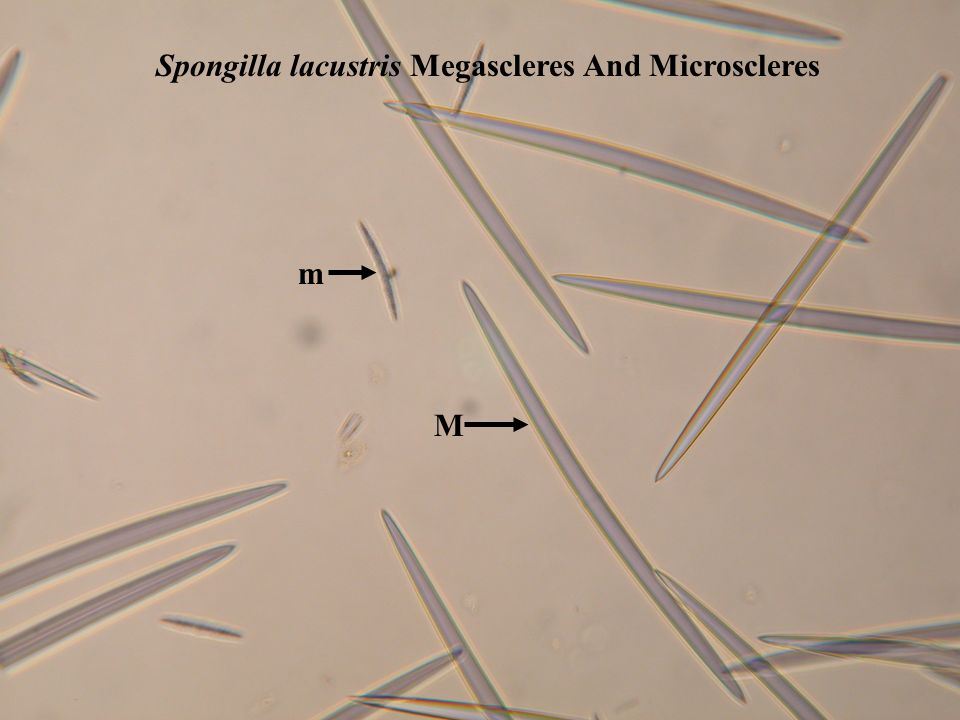 Spongilla lacustris Megascleres And Microscleres