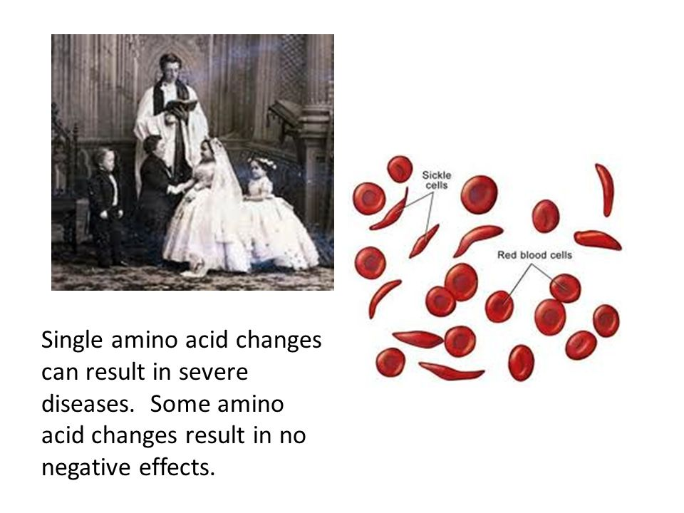 Single amino acid changes can result in severe diseases