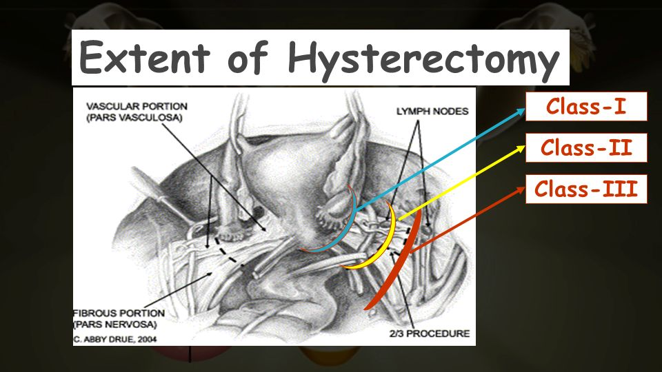 Extent of Hysterectomy