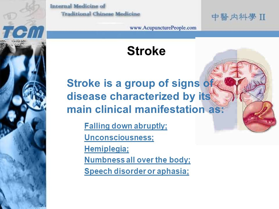 Stroke Stroke is a group of signs of disease characterized by its main clinical manifestation as: Falling down abruptly;