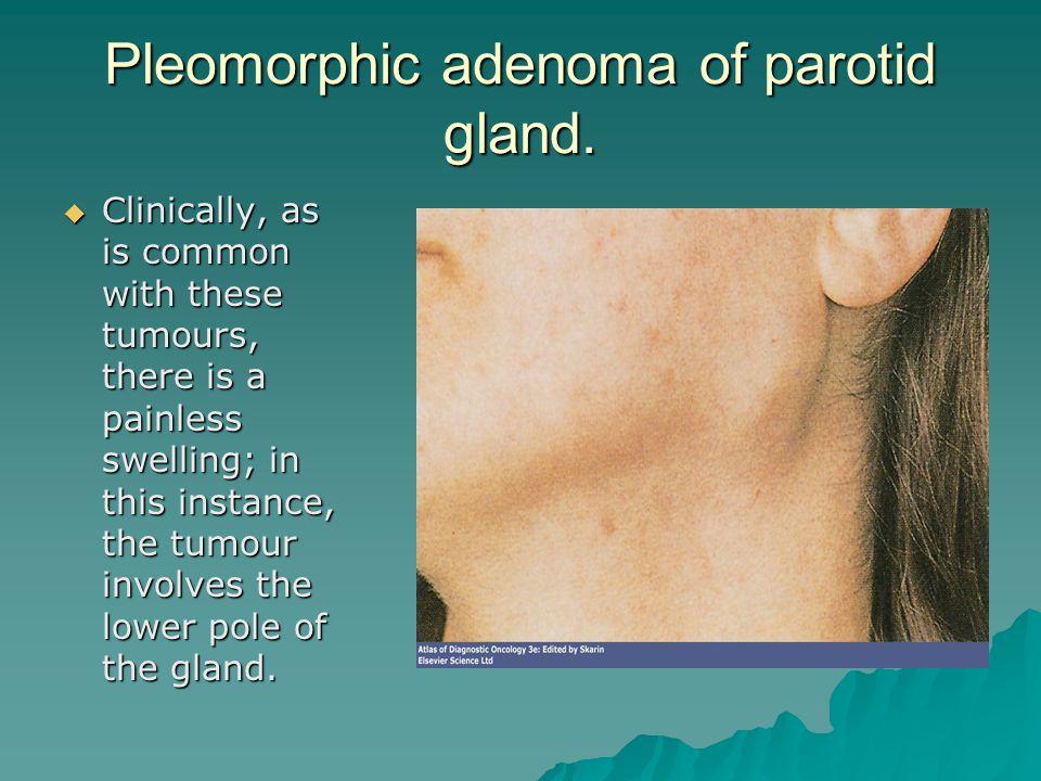 Pleomorphic adenoma of parotid gland.