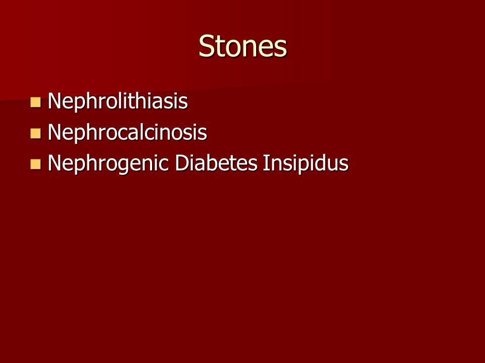 Stones Nephrolithiasis Nephrocalcinosis Nephrogenic Diabetes Insipidus