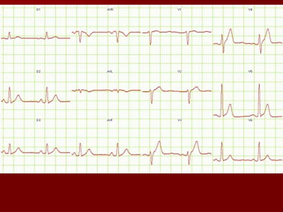 Short QT and widened T-wave