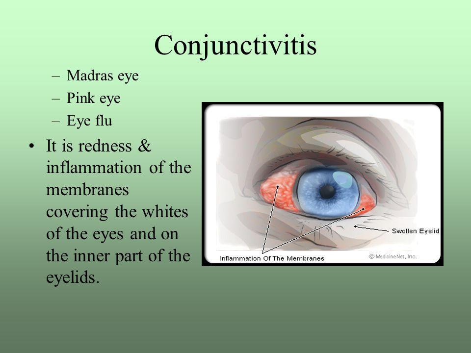 Conjunctivitis Madras eye. Pink eye. Eye flu.