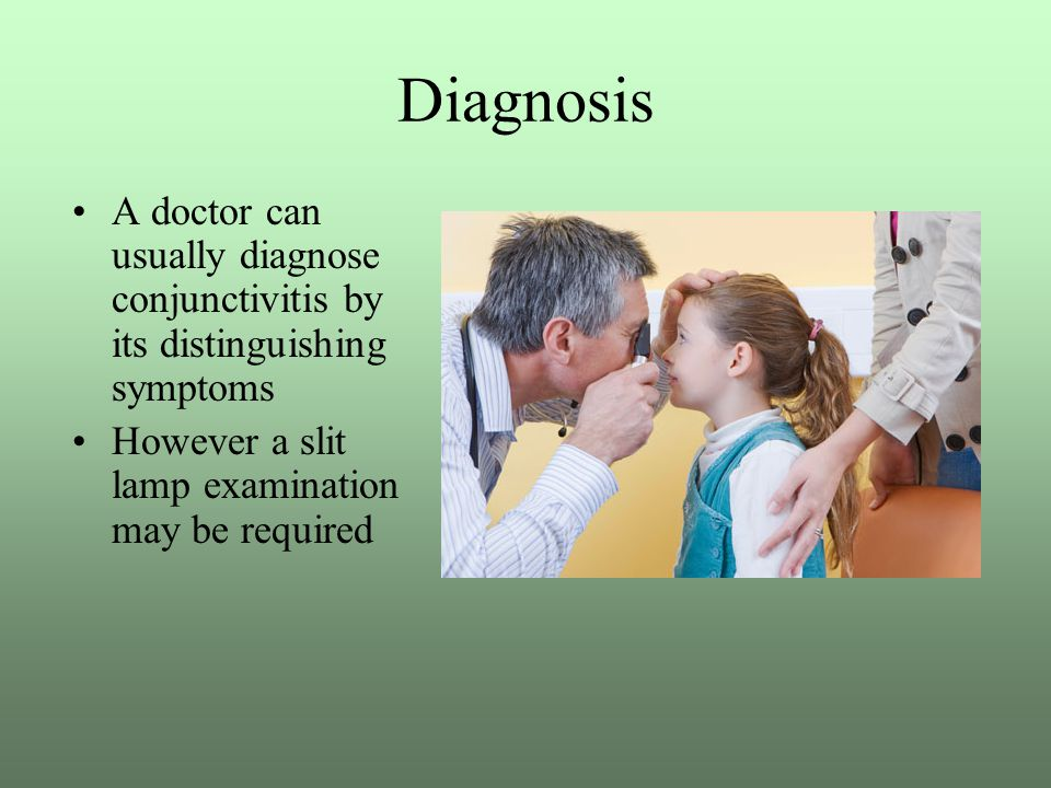 Diagnosis A doctor can usually diagnose conjunctivitis by its distinguishing symptoms.