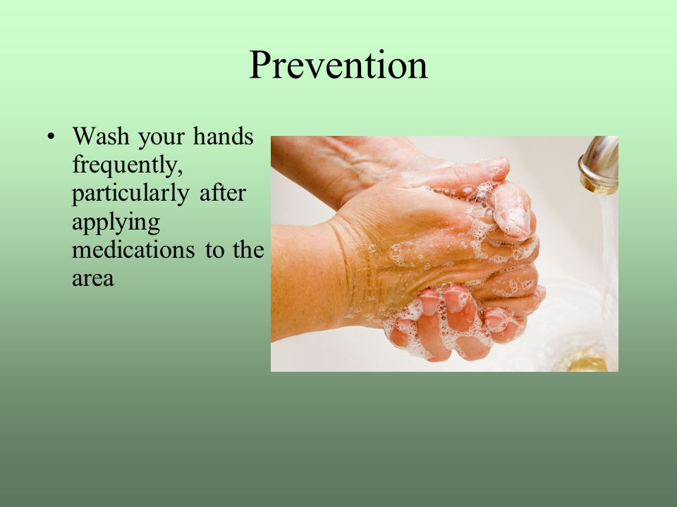 Prevention Wash your hands frequently, particularly after applying medications to the area