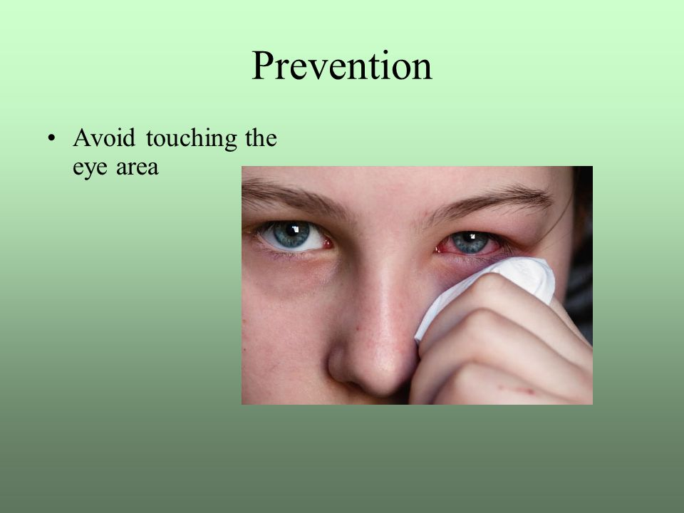 Prevention Avoid touching the eye area