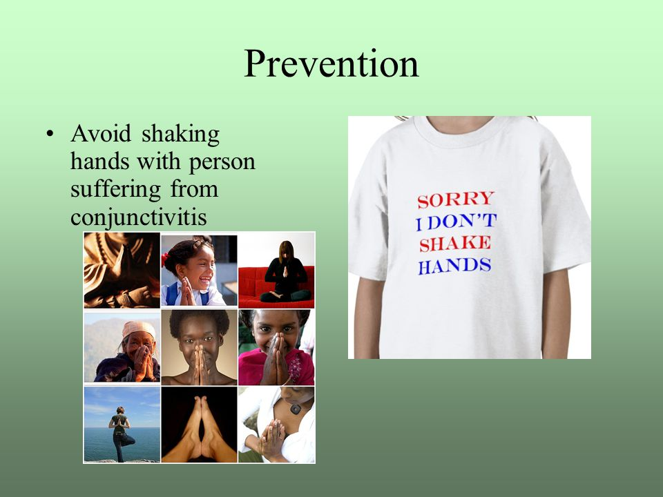 Prevention Avoid shaking hands with person suffering from conjunctivitis