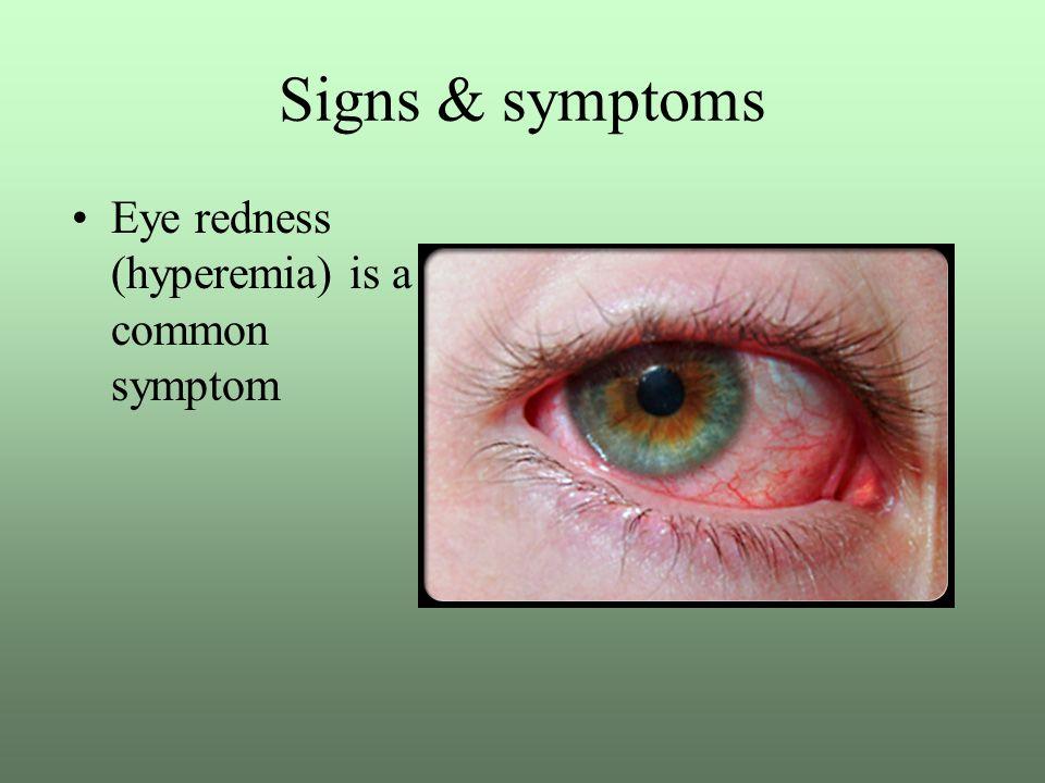 Signs & symptoms Eye redness (hyperemia) is a common symptom