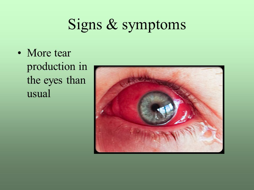 Signs & symptoms More tear production in the eyes than usual