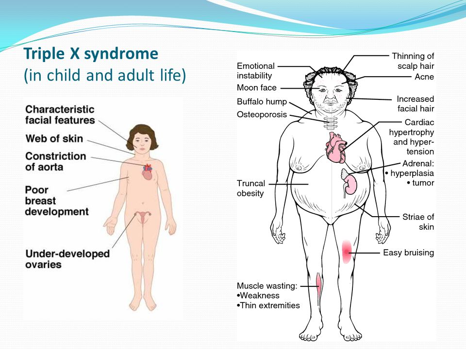 People with xyy syndrome
