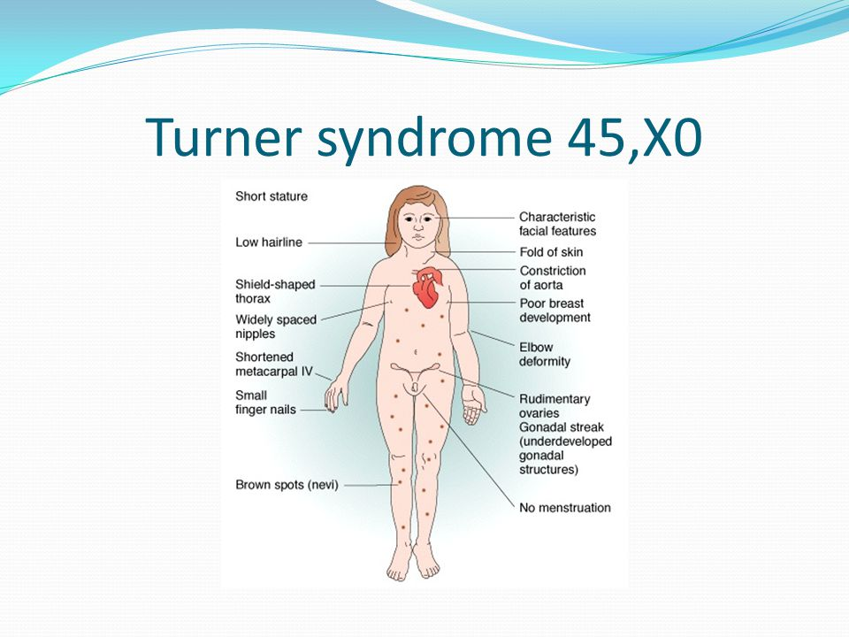 Turner syndrome 45,X0