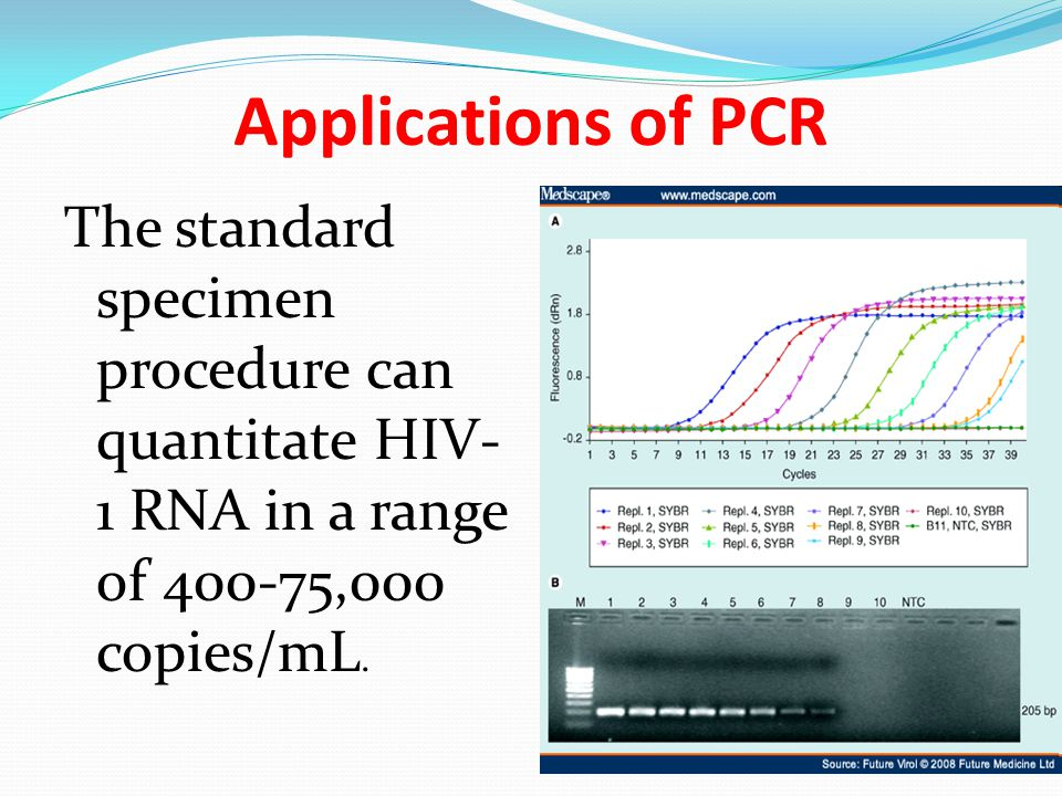 Applications of PCR The standard specimen procedure can quantitate HIV-1 RNA in a range of 400-75,000 copies/mL.