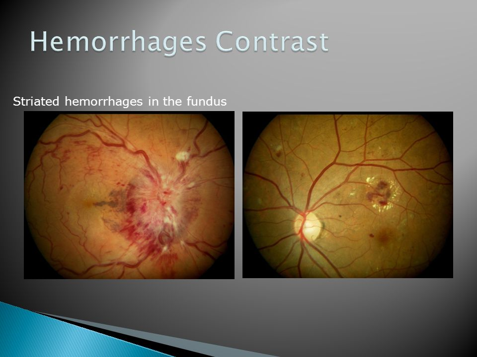 Hemorrhages Contrast Striated hemorrhages in the fundus