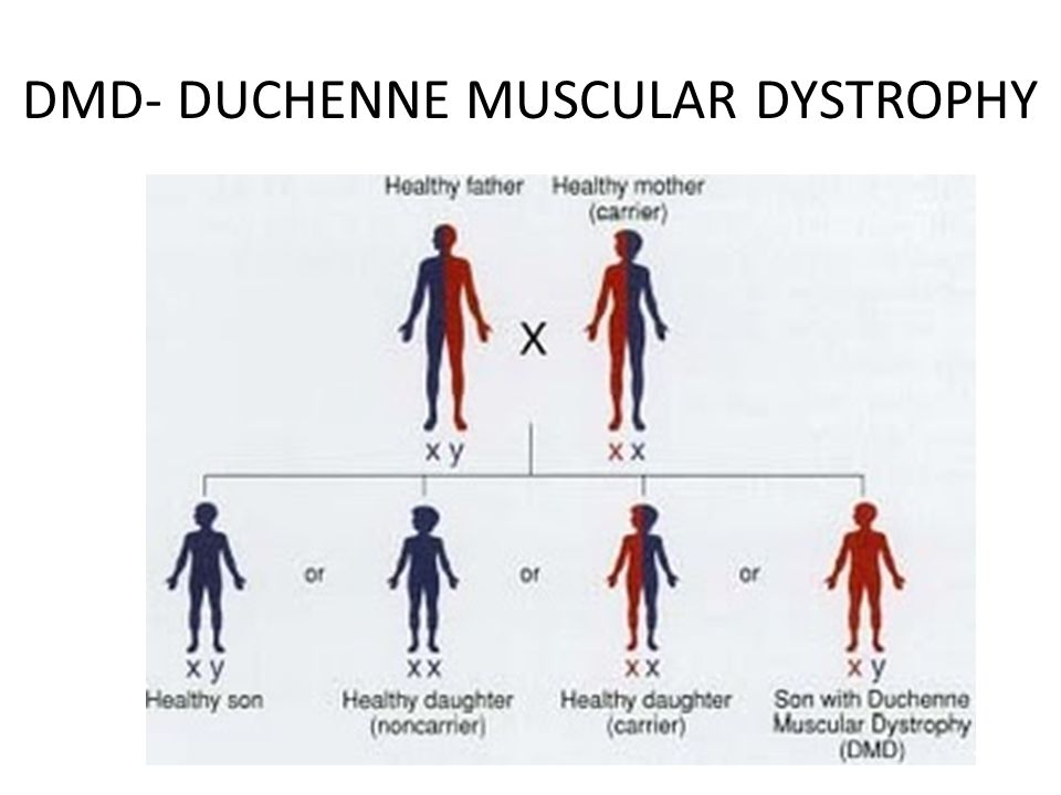 the main characteristics of muscular dystrophy Muscular dystrophy (md) is a collective group of inherited noninflammatory but progressive muscle disorders without a central or peripheral nerve abnormality.