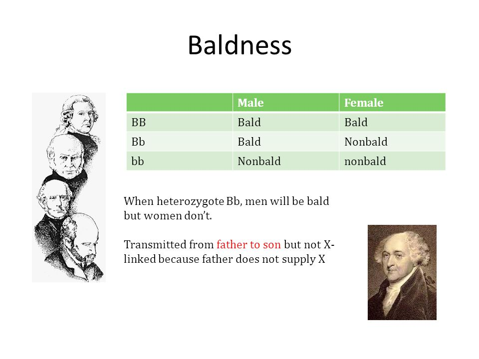 Baldness Male Female BB Bald Bb Nonbald bb nonbald