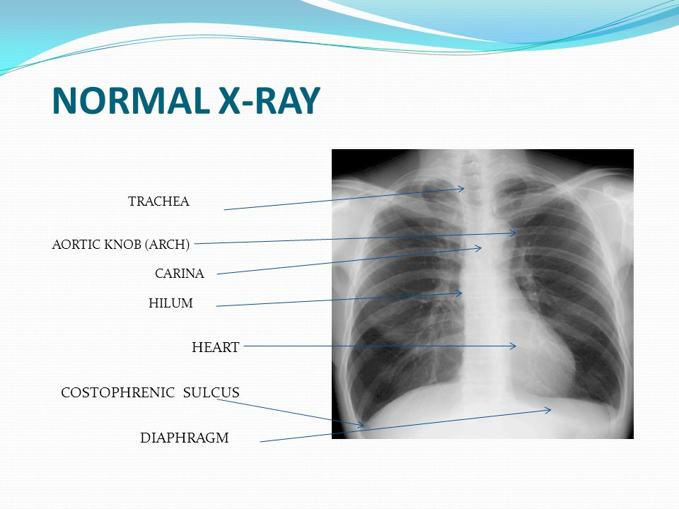NORMAL X-RAY HEART TRACHEA AORTIC KNOB (ARCH) CARINA HILUM