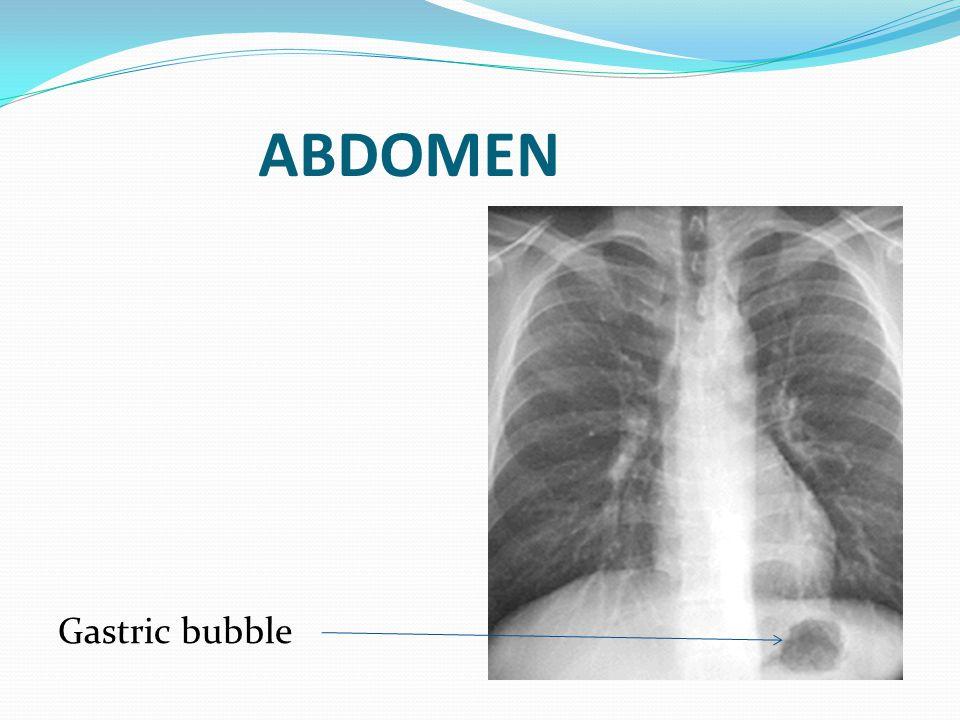 ABDOMEN Gastric bubble