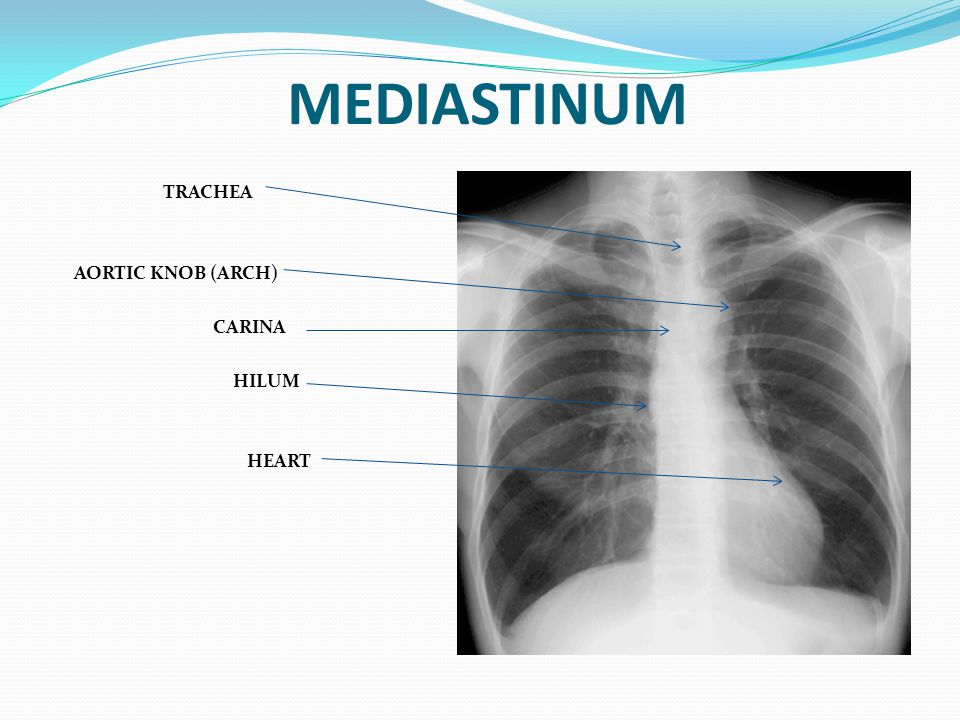 MEDIASTINUM TRACHEA AORTIC KNOB (ARCH) CARINA HILUM HEART