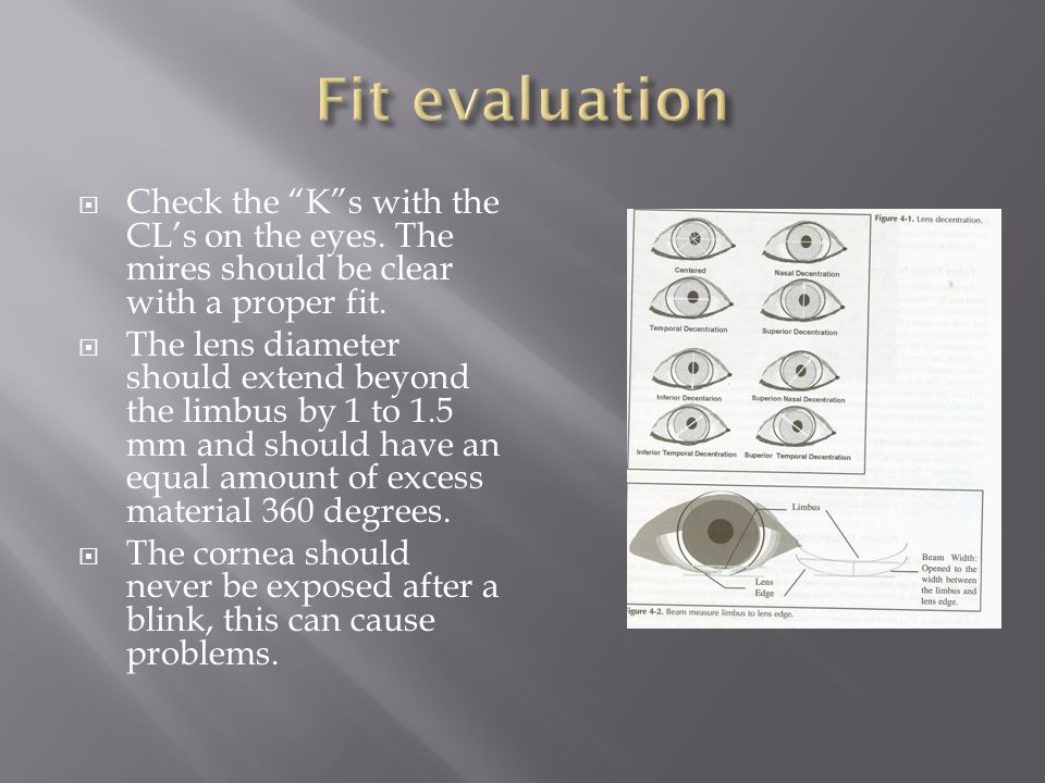 Fit evaluation Check the K s with the CL's on the eyes. The mires should be clear with a proper fit.