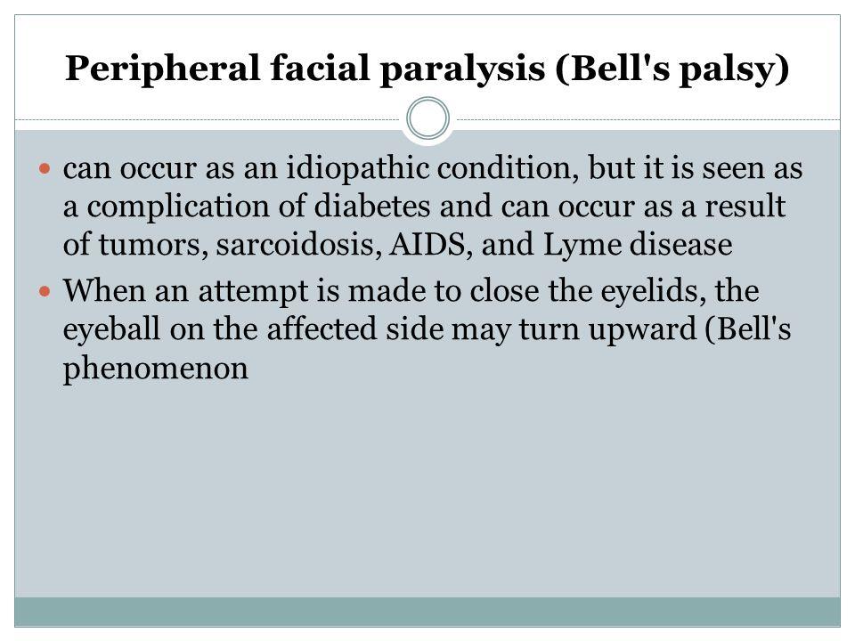 Peripheral facial paralysis (Bell s palsy)